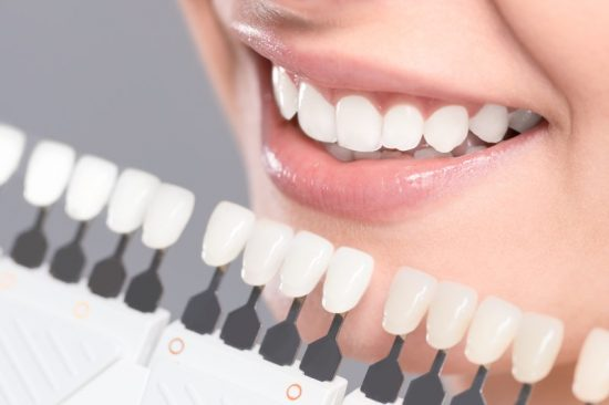 What Are Some of the Health Benefits Associated With Teeth Whitening?