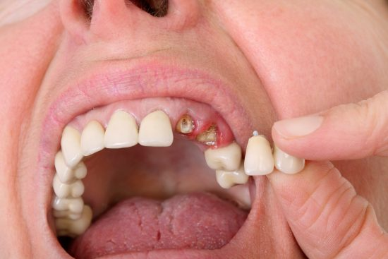 Use These 4 Easy Tips When Seeking Wisdom Teeth Removal in Burlington
