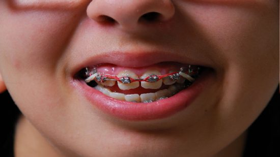 Tips Before Going for Emergency Dentistry in Upatoi, GA